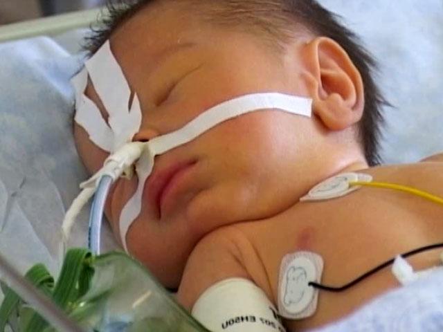 Атрезия пищевода у новорожденных – что делать?