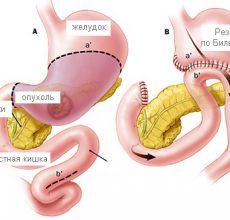 Причины удаления желудка