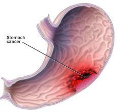 Почему возникает лимфома желудка и как ее лечить?