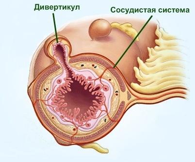 Дивертикул кишечника: симптомы и лечение