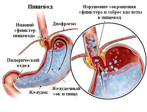 Нарушения сокращения сфинктера пищевода