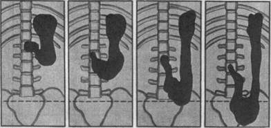 Опущение желудка - симптомы, лечение, причины появления
