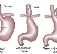 Основные способы исцеления грыжи желудка