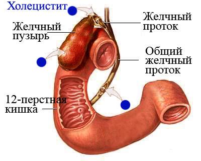 Развитие холецистита