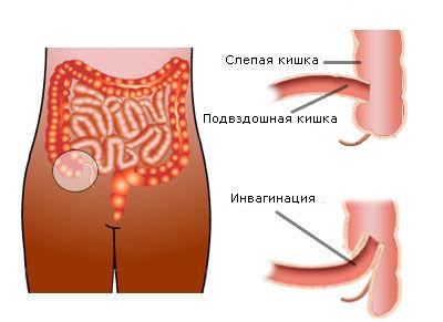 Схема протекания болезни