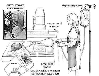 Аппаратура для ирригоскопии