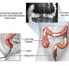 Зачем делают ирригоскопию кишечника?