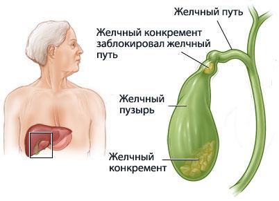 Камни внутри органа