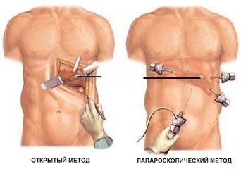 Киста селезенки: причины, симптомы, методы лечения