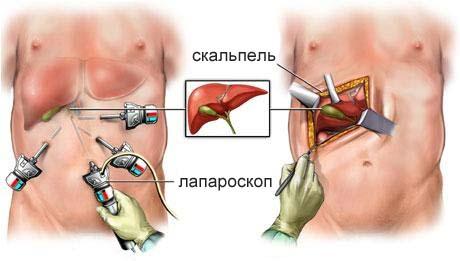 Лапароскопия при полипах