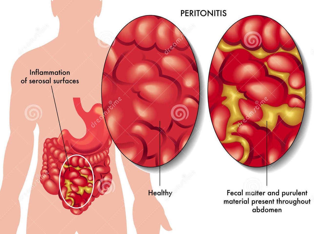 Перитонит хронический