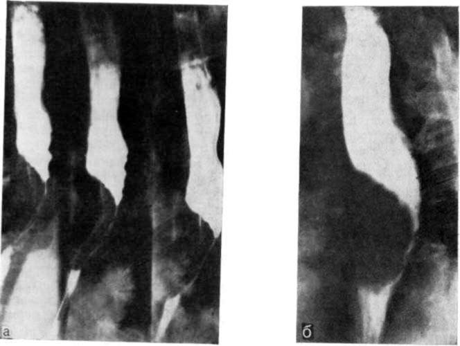 Опухоль на рентгеновском снимке