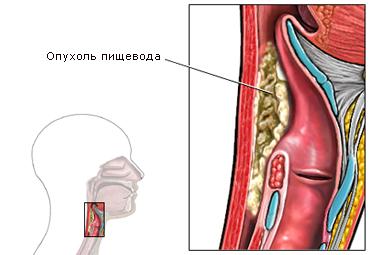 Расположение опухоли