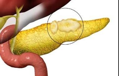 Жировая ткань на органе