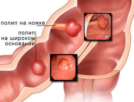 Лечение полипов в кишечнике народными средствами
