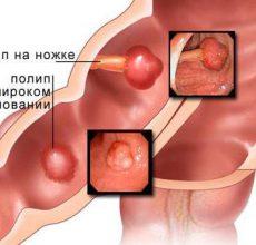 Признаки и лечение полипов в кишечнике