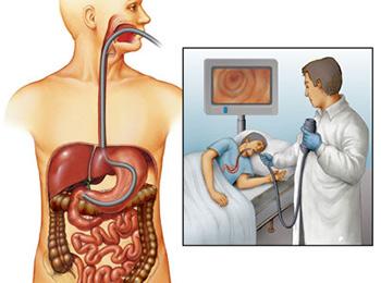 Ксантома желудка: как проводится лечение?
