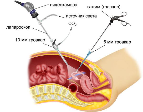 Процесс проведения лапароскопии