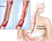 Признаки и лечение непроходимости пищевода