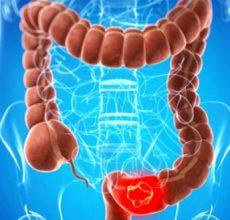 Признаки и симптомы рака кишечника