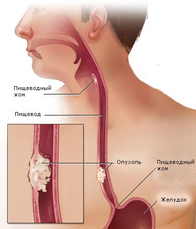 Лейомиома пищевода: методы лечения и признаки болезни