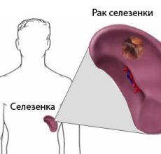 Выявление и лечение рака селезенки