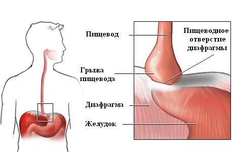 Грыжа пищевода: симптомы и лечение, причины возникновения, диета