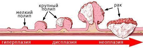 Размеры полипов