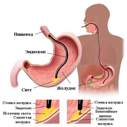 Биопсия желудка: расшифровка результатов, что показывает?