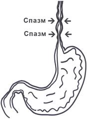 Спазм пищевода: симптомы и лечение, как снять его?