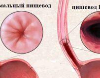 Чем грозит метаплазия пищевода?
