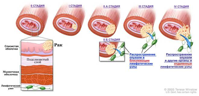 Рак пищевода: первые симптомы и признаки, сколько живут, методы лечения