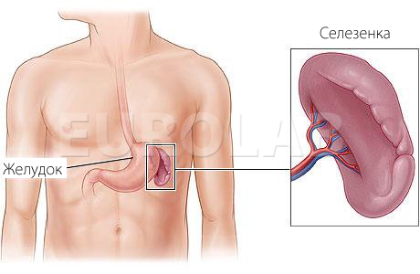 Удаление селезенки: последствия, диета после операции