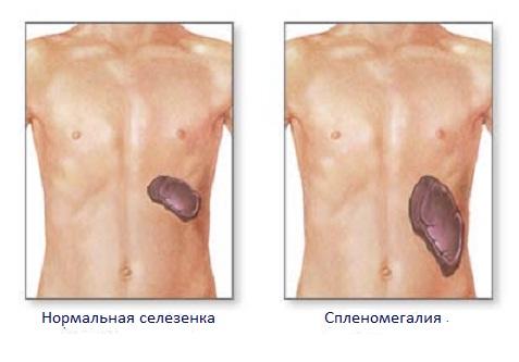 Нормы размеров органа