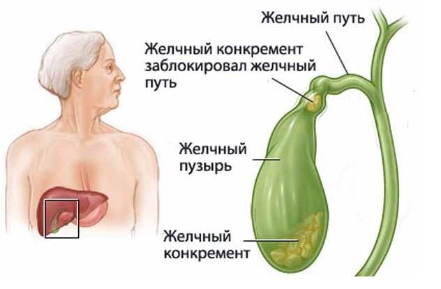 Холестероз желчного пузыря: лечение, симптомы, народные средства