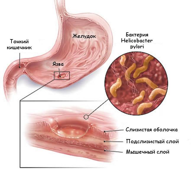 Температура при язве желудка – бывает ли и как снять?