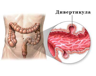 Дивертикула толстого кишечника