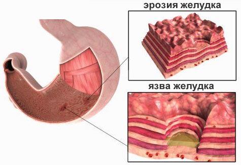 Различия между язвой и эрозией