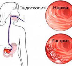 Что представляет собой ФКС кишечника?