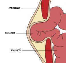 Причины возникновения грыжи брюшной полости и способы ее лечения