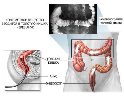 Процесс проведения ирригоскопии