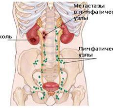 Разновидности и лечение лимфаденопатии брюшной полости
