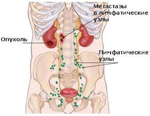 Лимфоузлы в брюшной полости