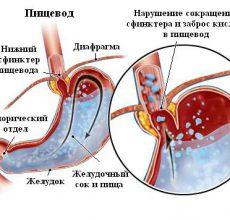 Методика лечения недостаточности кардии желудка