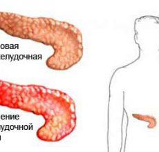 Как лечить стеатоз поджелудочной железы?