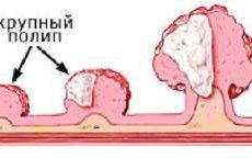 Методы избавления от полипов в желудке