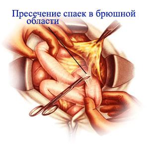 Спайки кишечника причины симптомы лечение
