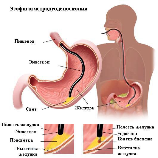 Лекарство от боли в желудке – что принять?