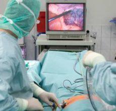 Процедура гастроскопии желудка