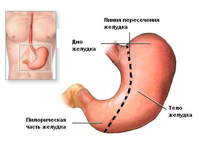 Тело желудка отсекается